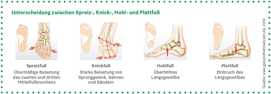 Grafik: Unterscheidung zwischen Spreiz-, Knick-, Hohl- und Plattfuß