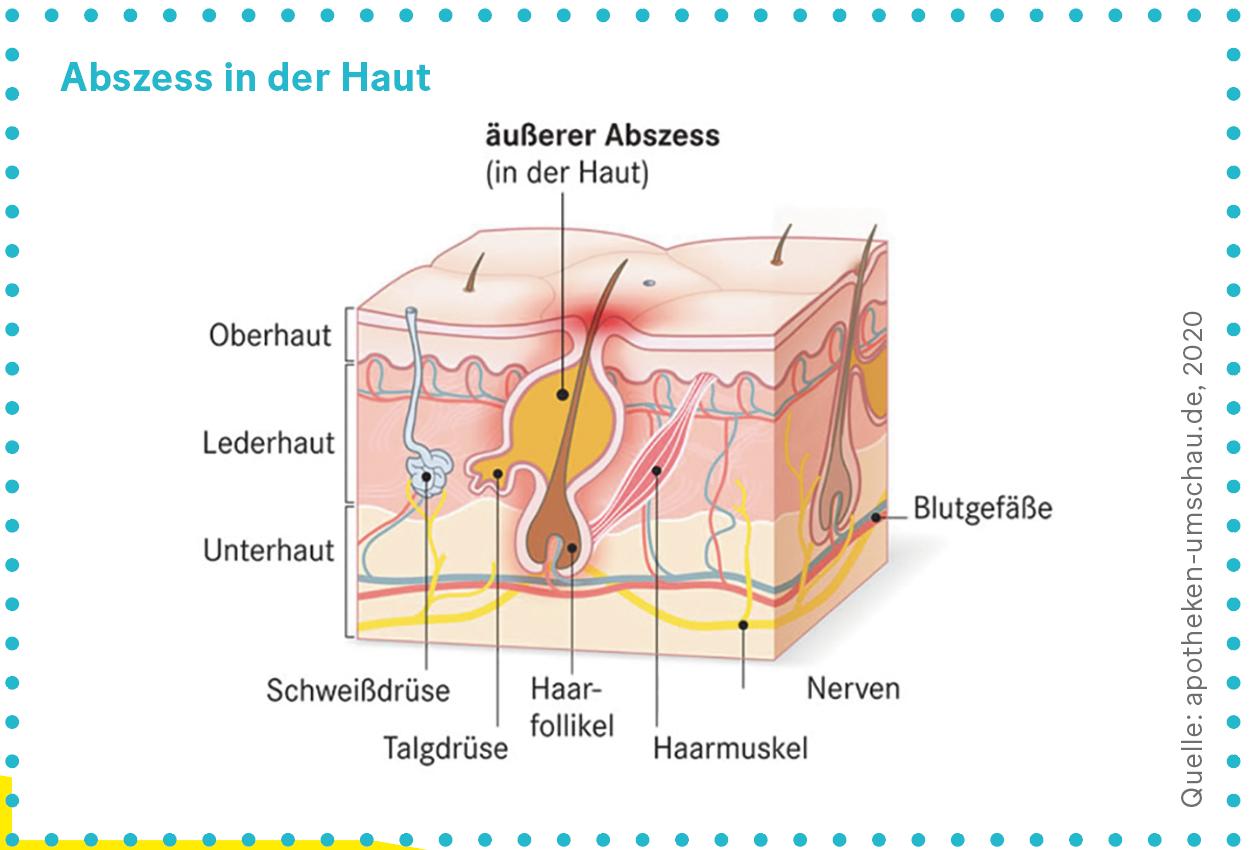 Grafik: Abszess in der Haut