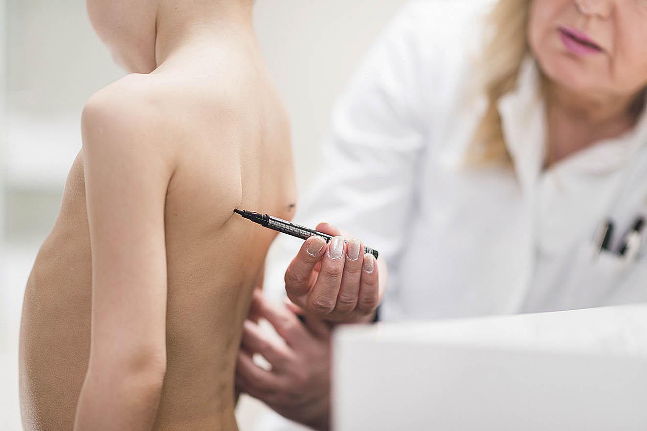 Ärztin markiert Schulterblatt auf Rücken eines Kindes.