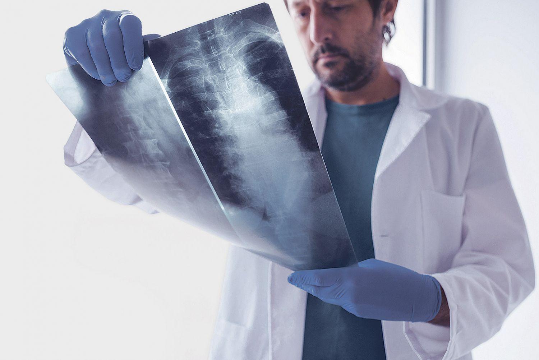 Mediziner betrachtet Röntgenbild einer Wirbelsäule. Thema: Orthopädische Implantate
